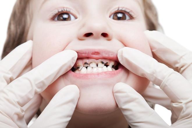 Причины и лечение белых пятен на зубах