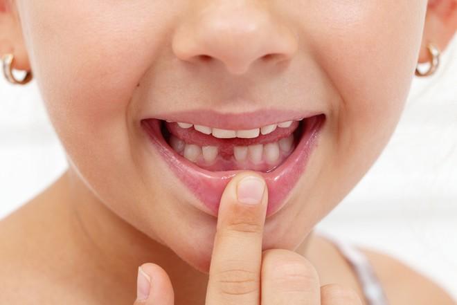 Удаление молочных зубов у детей: проведение и возможные осложнения