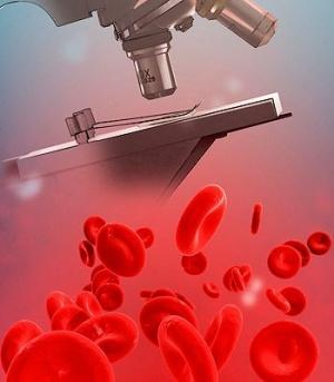 Лечение при сгущении крови во время беременности