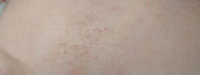 Аллергия?