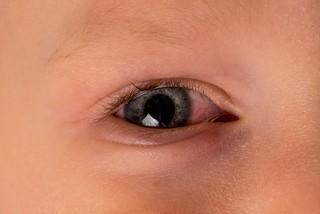 Причины, симптомы и лечение красных глаз у детей
