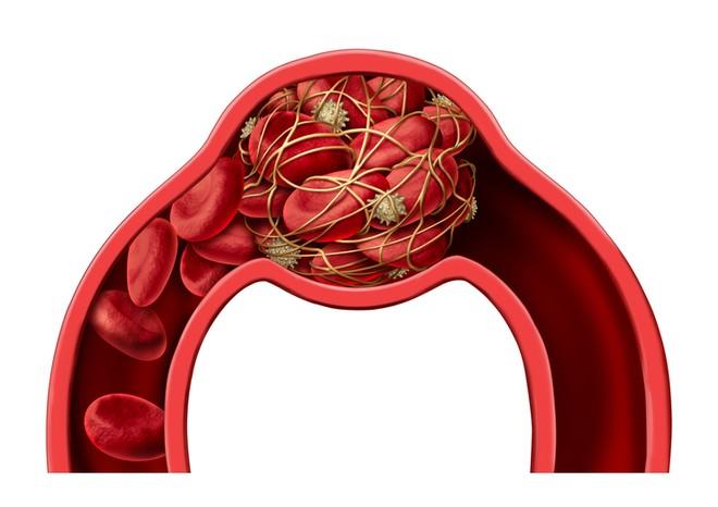 Насколько эффективна эмболизация маточных артерий при миоме матки