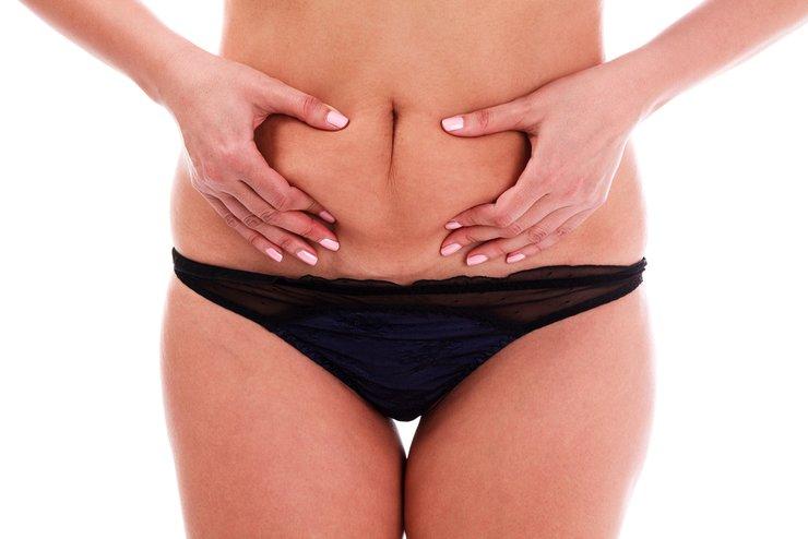 гормональный живот у женщин причины