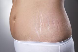 Какие масла при беременности от растяжек стоит использовать