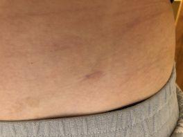 #эндометриоз #эндометриоидные кисты #лапароскопия #золадекс
