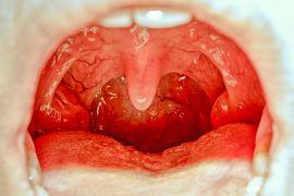 Когда красные точки в горле у ребенка - повод для беспокойства
