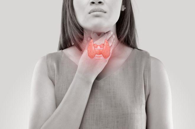 Симптомы зоба щитовидной железы у женщин на ранней и поздней стадиях