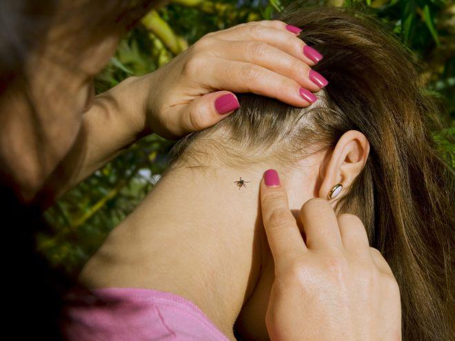 Как не заразиться вирусным энцефалитом: педиатр советует подготовиться к ранней активности клещей