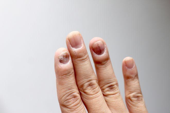 Причины и лечение волнистых ногтей на руках