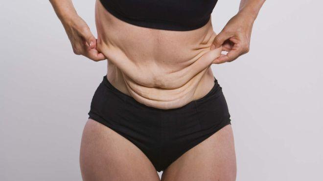 Как подтянуть обвисшую кожу после похудения в домашних условиях