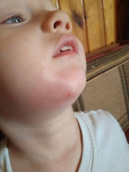 Опухла царапина
