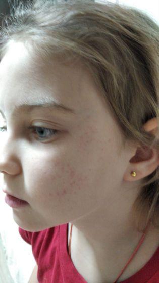 Пятна на лице у дочери