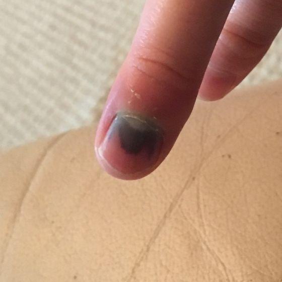 Прибила палец