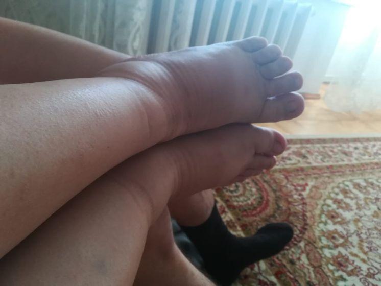 Ноги отекли